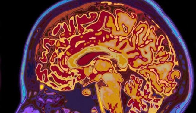 6. Beyin yaşla nasıl değişir