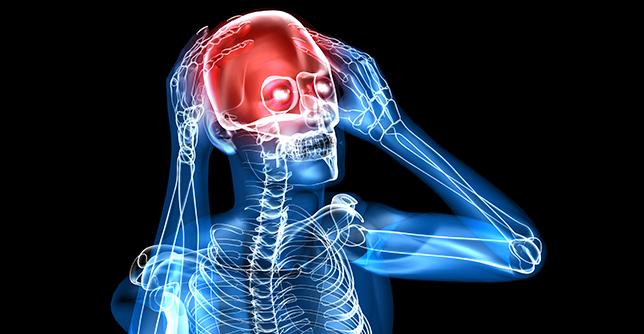 Beyin Tümörü Nedir
