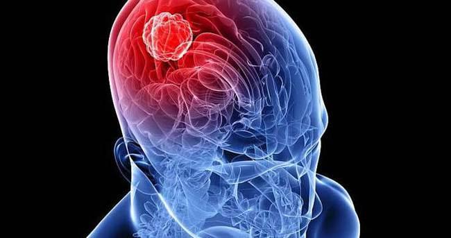 Beyin tümörü belirtileri nelerdir