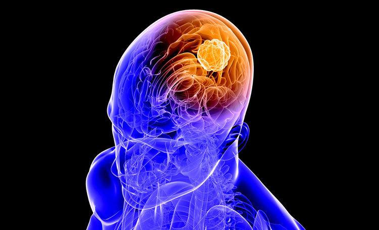 Beyin tümörü tipleri