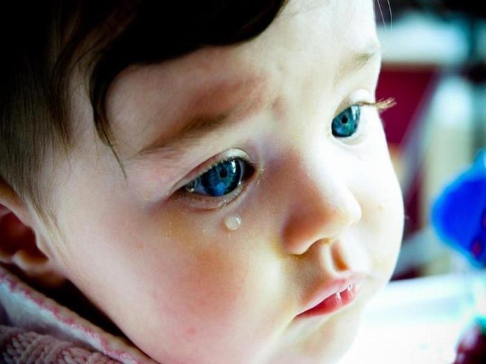 Bir bebekte tıkalı bir gözyaşı kanalının belirtileri