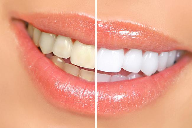 Diş Fırçasının Seçilmesi Elektrikli ve Tek Kullanımlık Artı ve Eksileri