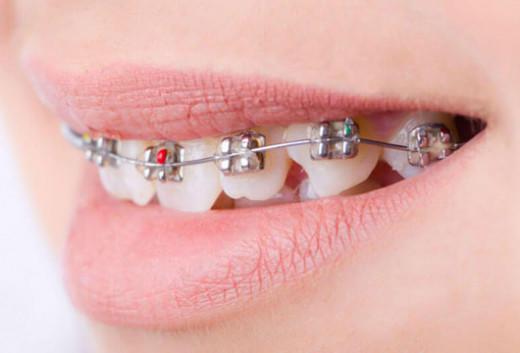 Diş Telleri İle Diş Bakımı 2018
