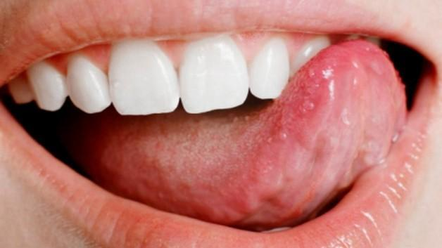 Dil kanseri belirtileri
