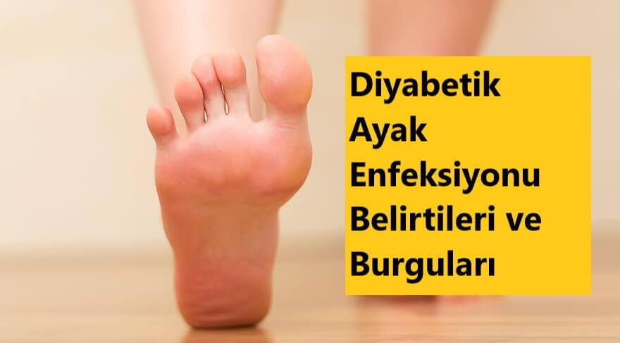 Diyabetik Ayak Enfeksiyonu Belirtileri ve Burguları