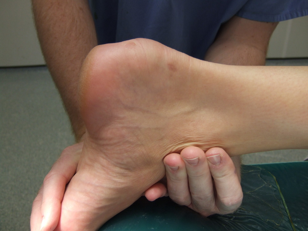 Haglund'un Deformitesi Neden Olur Haglund'un Deformitesi Nasıl Tedavi Edilir
