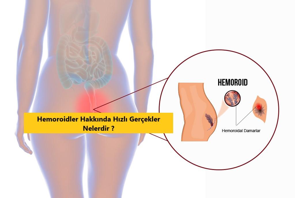 Hemoroidler Hakkında Hızlı Gerçekler Nelerdir