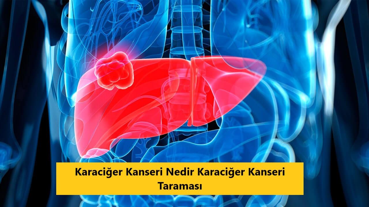 Karaciğer Kanseri Nedir Karaciğer Kanseri Taraması