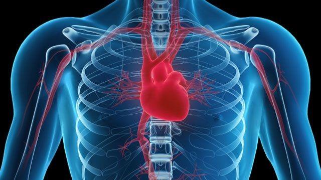Koroner arter hastalığı nasıl gelişir
