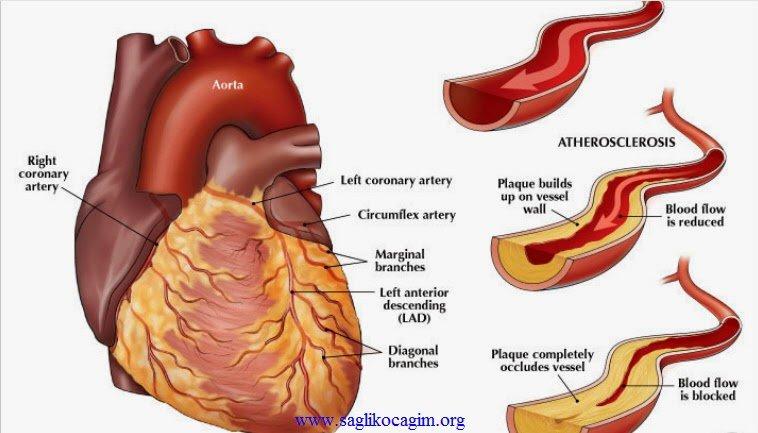 Koroner arter hastalığı nasıl teşhis edilir