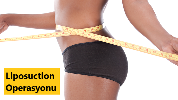 Liposuction Operasyonu