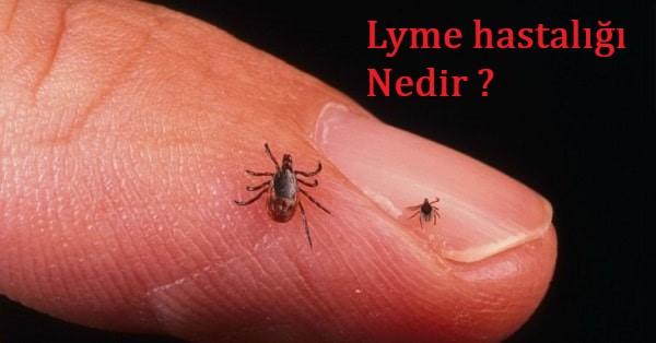 Lyme hastalığı nedir