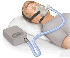 Uyku apnesinin tipleri nelerdir