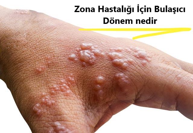 Zona hastalığı için bulaşıcı dönem nedir