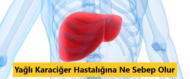 yağlı karaciğer hastalığına ne sebep olur