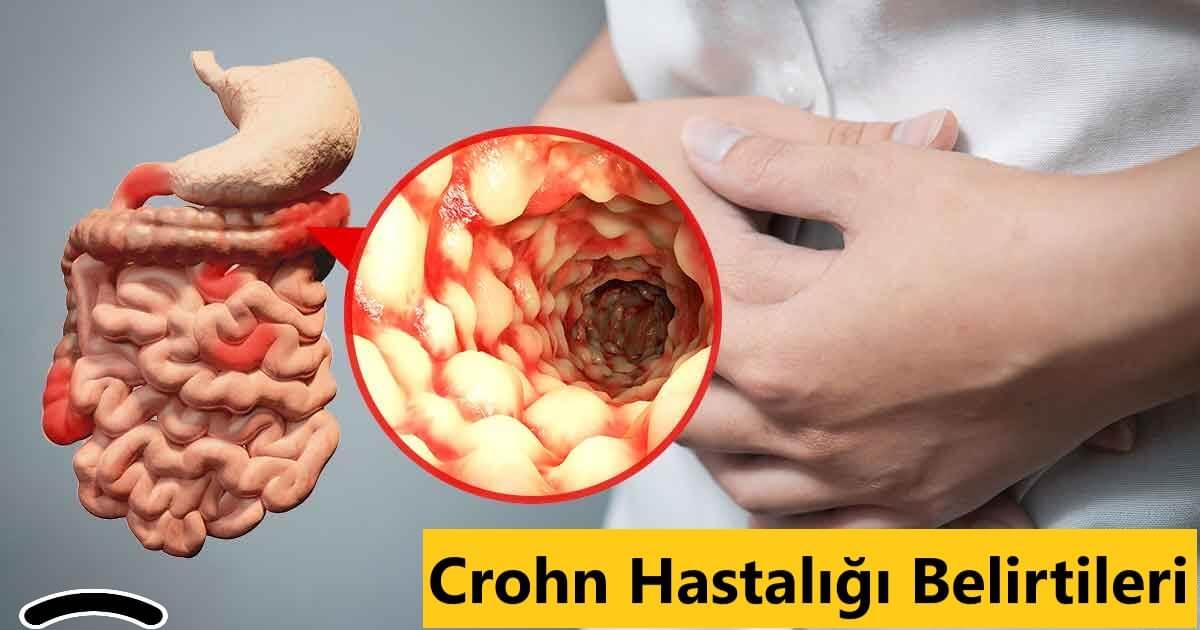 Crohn Hastalığı Belirtileri