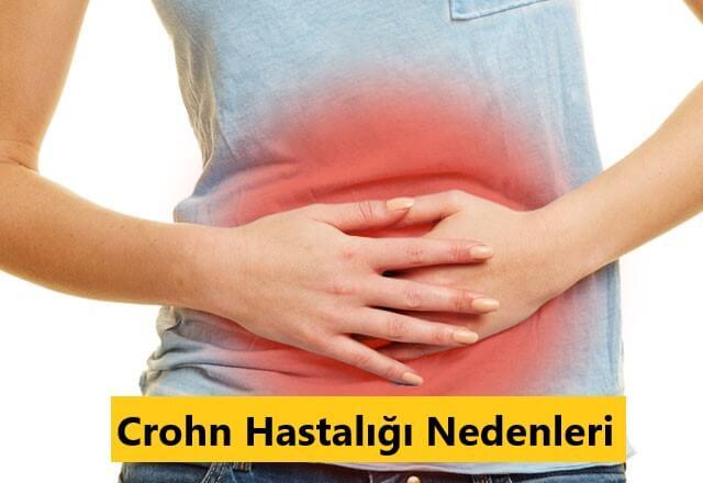 Crohn Hastalığı Nedenleri