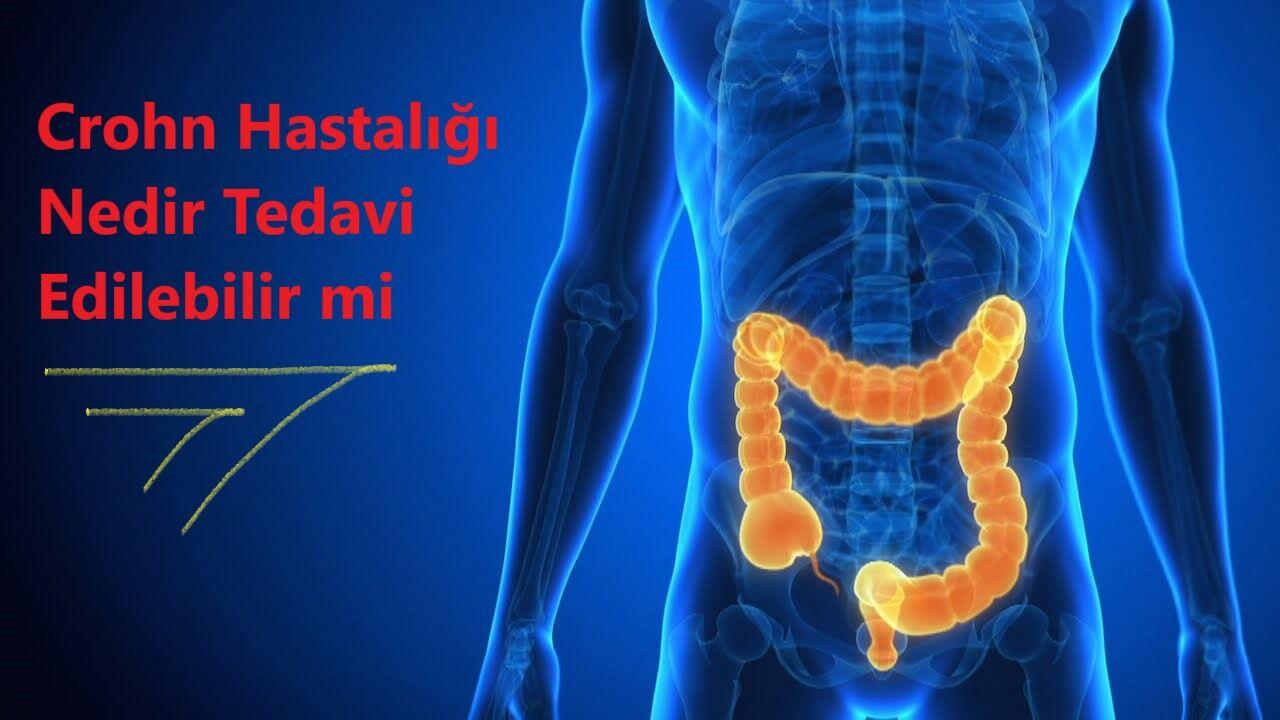 Crohn Hastalığı Nedir, Belirtileri, Beslenme Tedavisi