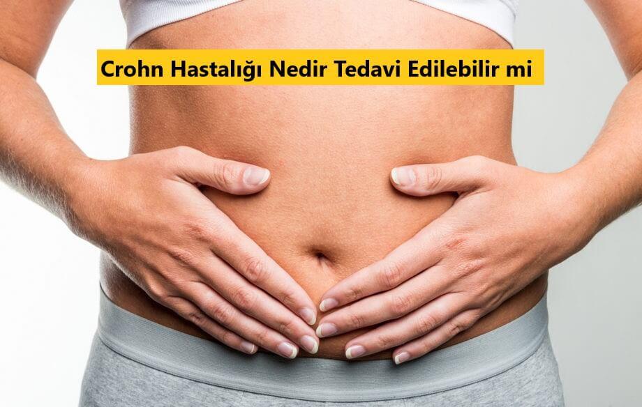 Crohn Hastalığı Nedir Tedavi Edilebilir mi