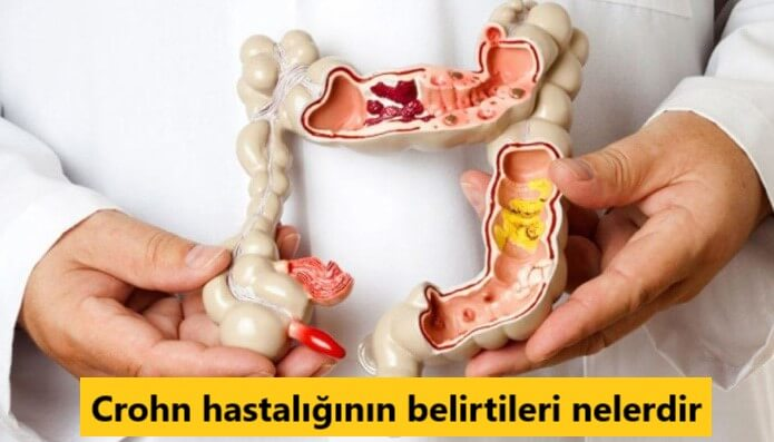 Crohn hastalığının belirtileri nelerdir