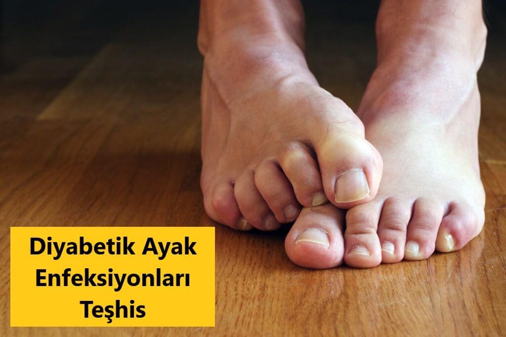 Diyabetik Ayak Enfeksiyonları Teşhis