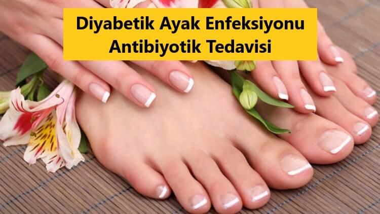 Diyabetik Ayak Enfeksiyonu Antibiyotik Tedavisi