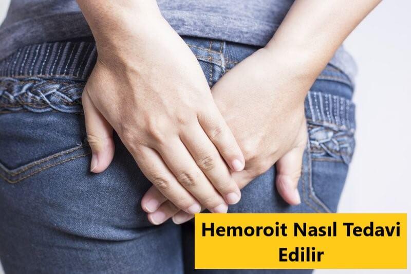 Hemoroit Nasıl Tedavi Edilir